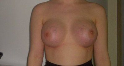 Thay đổi vị trí núm vú và quầng vú sau khi nâng ngực bằng túi độn