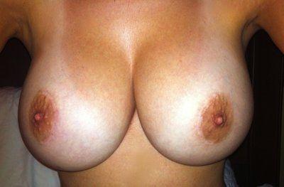 Khắc phục biến chứng lồi đáy vú và hai bầu ngực hơi dính vào nhau (symmastia)