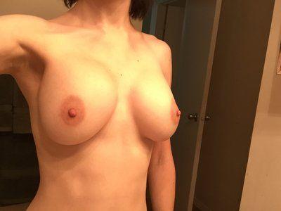 Có phải ngực tôi bị biến dạng Snoopy không? Làm thế nào để khắc phục?