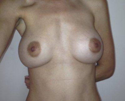 Nâng ngực ở người bị ngực lồi bẩm sinh (ngực ức gà), chỉnh sửa để tạo khe ngực đầy đặn hơn