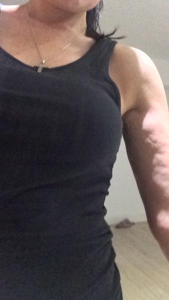 Tôi đã hút mỡ VASER ở hai bên cánh tay không quá to. Tôi chỉ muốn bắp tay săn chắc hơn nhưng kết quả thật sự tệ