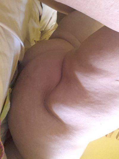 Xuất hiện sẹo xấu 9 ngày sau hút mỡ VASER . Tôi rất lo lắng, liệu tình trạng này có bình thường không?
