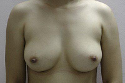 Túi độn ngực Mentor có đang vào vị trí một cách bình thường không?