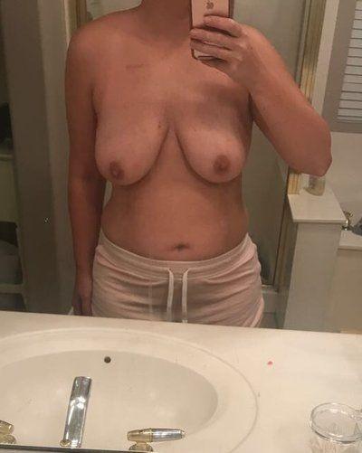 Tôi có phù hợp nâng ngực chảy xệ không dùng túi độn và căng da bụng hay không?