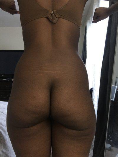 Nên giảm cân hay tăng cân trước khi nâng mông và tạo hình thành bụng?