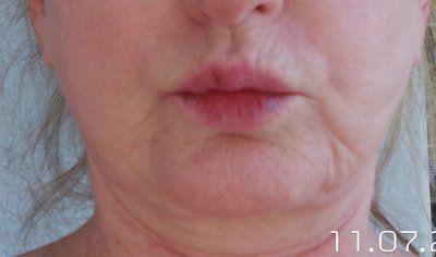 64 tuổi thì nên điều trị bằng laser hay phẫu thuật căng da mặt?