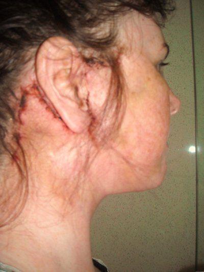 Sưng và nổi cục trong 3 tuần sau căng da mặt có bình thường không?