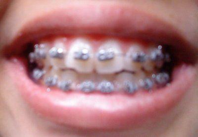 Niềng răng trong bao lâu để răng thẳng lại?
