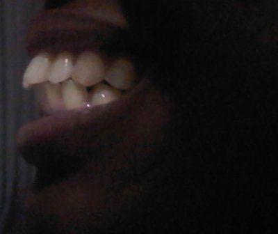 Có thể khắc phục được tình trạng răng chen chúc xô lệch mà không cần nhổ răng không?