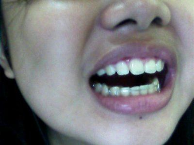 Hàm duy trì có thể dịch chuyển lại răng sau khi tháo niềng răng 6 tháng không?