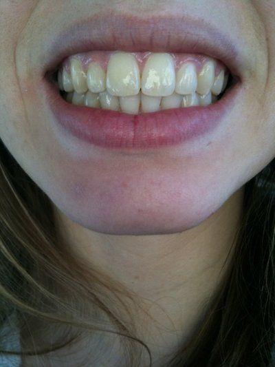 Cách chỉnh sửa răng cửa bị to?