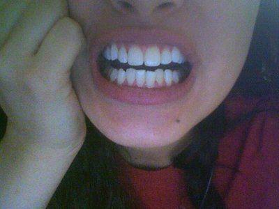 Lựa chọn niềng răng truyền thống hay niềng Invisalign đối với răng khấp khểnh, thưa và khớp cắn sâu?