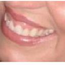Tôi có nên phẫu thuật cười hở lợi trước khi bọc răng sứ/dán sứ Veneer không?