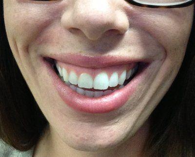 Có những phương pháp nào để chữa cười hở lợi?