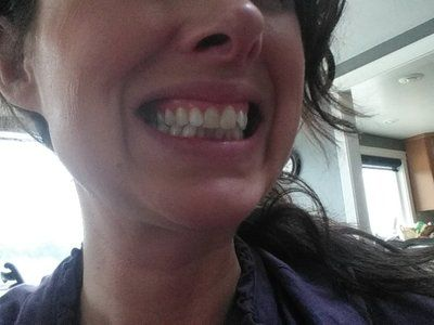 Nên phẫu thuật lợi bằng laser hay tiêm Botox để khắc phục cười hở lợi?