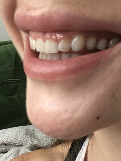 Tạo hình lợi bằng laser hay phẫu thuật làm dài thân răng để chữa cười hở lợi?