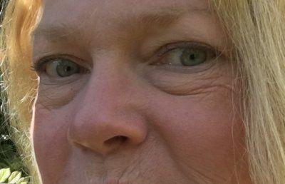 Phương pháp nào để trị bọng mắt và trẻ hóa quanh mắt?