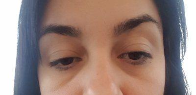 Cách hiệu quả nhất để loại bỏ bọng mắt là gì?