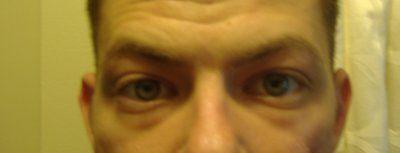 Bọng mắt của tôi là do tích nước hay mỡ?