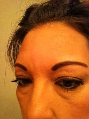 Phương pháp tạo hình mí mắt dưới có thể điều trị bọng mắt do di truyền không?