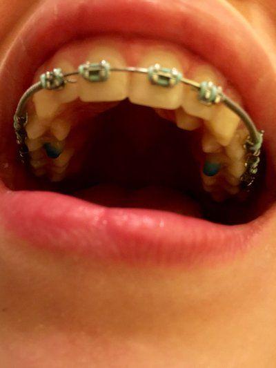 Có thể phẫu thuật cắt lợi ngay sau khi tháo niềng răng không?