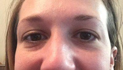 Phương pháp nào là hiệu quả nhất để trẻ hóa vùng dưới mắt?