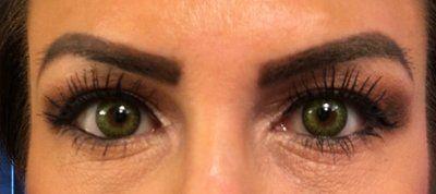 Phương pháp nào hiệu quả nhất để trị nếp nhăn dưới mắt?