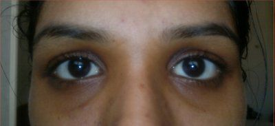 Làm thế nào để khắc phục tình trạng mắt trũng sâu?