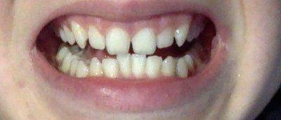 Răng cửa bị xoay và cười hở lợi thì có phù hợp với phương pháp phẫu thuật cắt lợi không?
