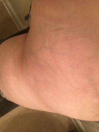 Nổi các tĩnh mạch màu xanh trên hông, đùi và chân ở tuổi 21?