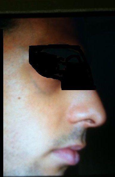 Cách xử lý tĩnh mạch lớn màu xanh trên mặt và thái dương?