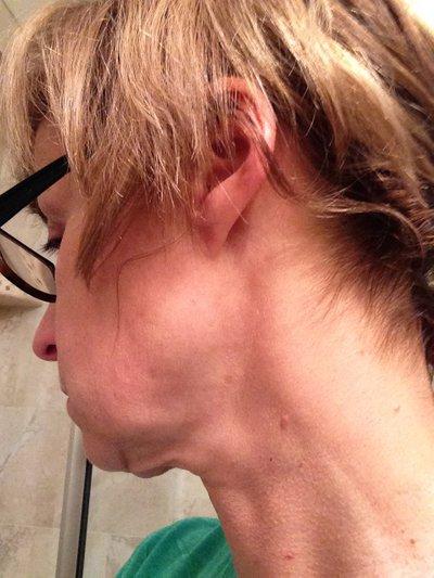 Cần làm gì để khắc phục tình trạng chảy xệ quanh cằm và cổ gà tây?