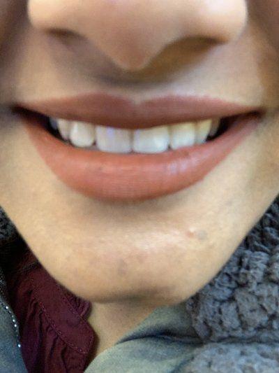 Cung hàm bị hẹp lại sau khi niềng răng thì cần làm gì?