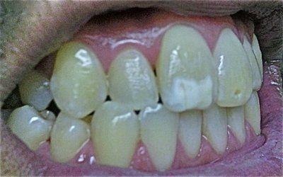Tôi cần niềng răng rồi dán sứ Veneer hay chỉ dán sứ thôi cũng được?