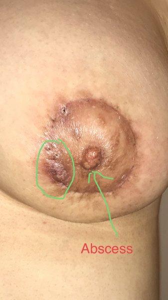Đây có phải là tình trạng viêm mô tế bào? (ảnh)