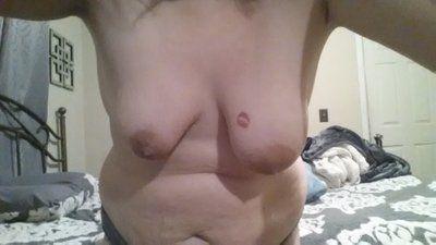 Hai bên ngực lệch nhau quá nhiều, phải làm gì?