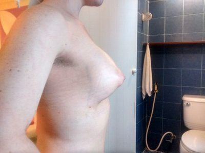 Túi độn dáng tròn vỏ nhám liệu có thể hạ xuống làm đầy nửa dưới vú cho ngực thể ống không?