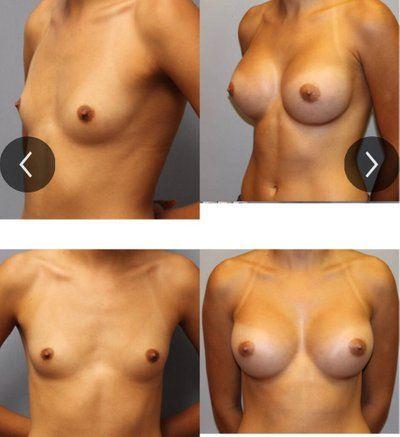 Độ nhô túi độn cho trường hợp thành ngực rộng?