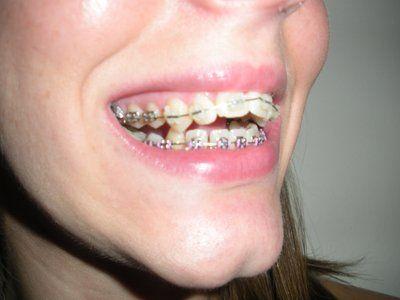 Răng bị thưa ra trong quá trình niềng có bình thường không?
