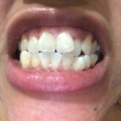 Khắc phục vấn đề khớp cắn và răng khấp khểnh mà không cần phẫu thuật