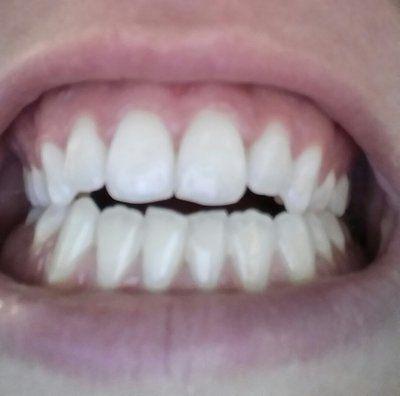 Răng cửa ở hai hàm không chạm nhau thì cần làm gì?