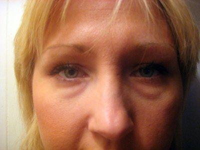 Nên cắt mí hay tiêm filler để trị bọng mắt do di truyền?