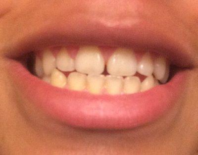 Khắc phục khe hở giữa răng cửa mà không cần niềng răng?