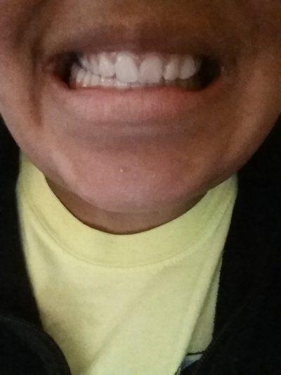 Hai hàm không thẳng hàng thì nên niềng răng hay phẫu thuật hàm?