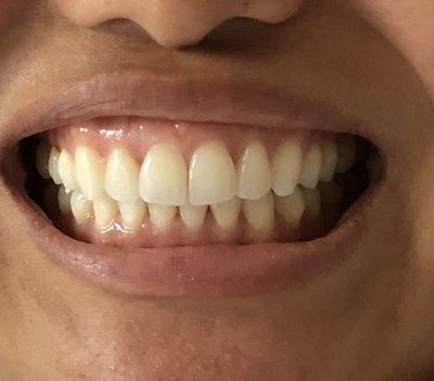 Niềng răng kim loại có sửa được đường midline bị lệch và khớp cắn sâu không?