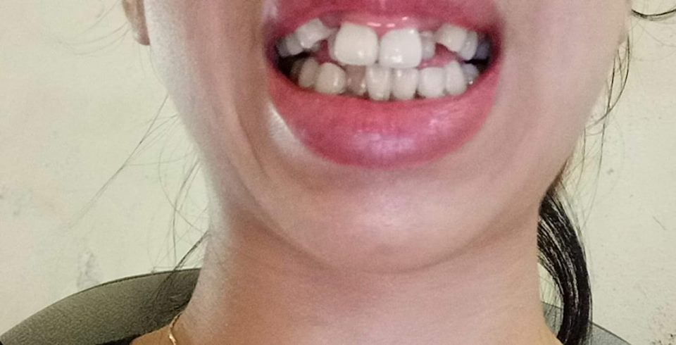 Răng bé, khấp khểnh nên chọn niềng hay bọc răng sứ?