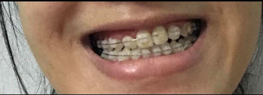 Niềng răng một năm rưỡi và vấn đề gặp phải