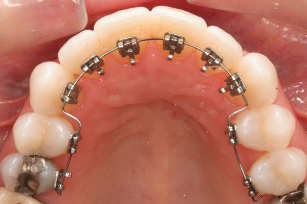 Niềng răng mặt lưỡi (mặt trong) và cách chăm sóc