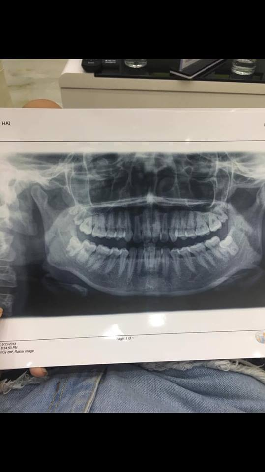 Răng mẻ và khấp khểnh có nên niềng răng không?