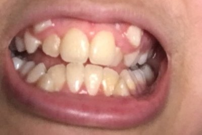 Răng nanh mọc lệch lên trên thì cần làm gì?